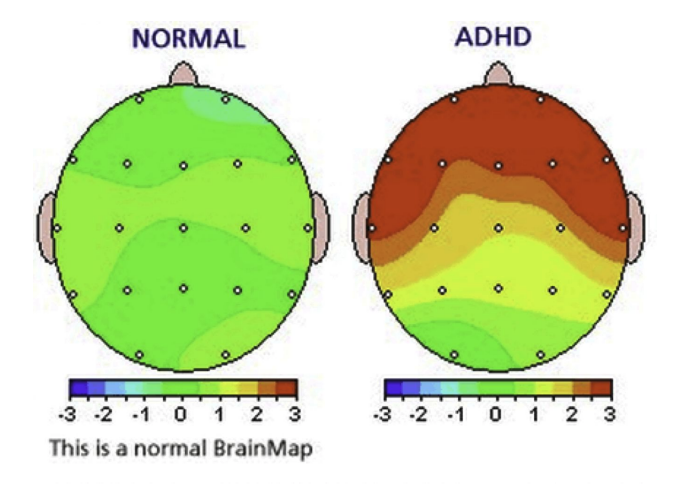 adhd_normal_vs_clinical